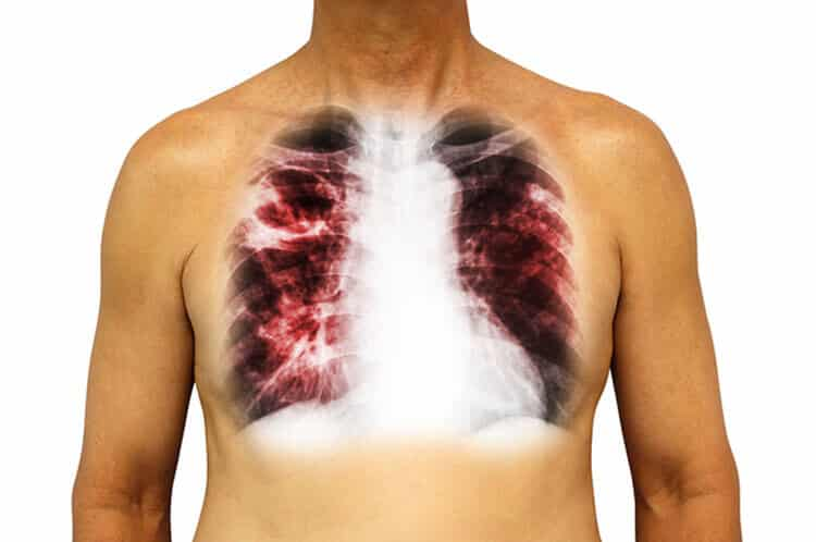 Lung cancer from Asbestos