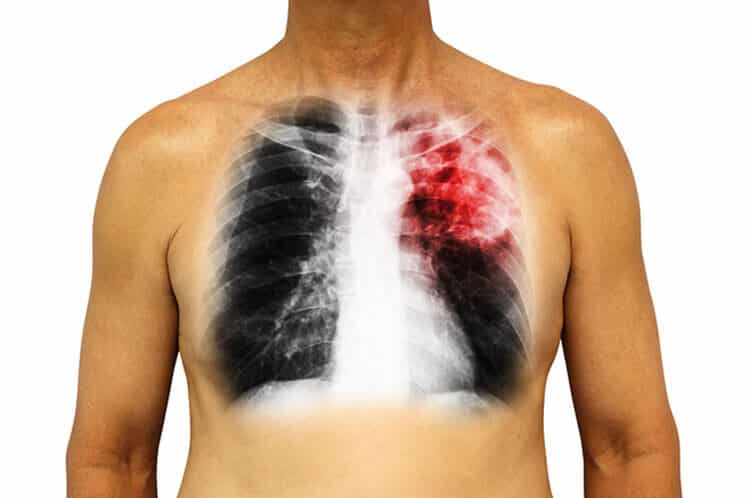 Mesothelioma from Asbestos
